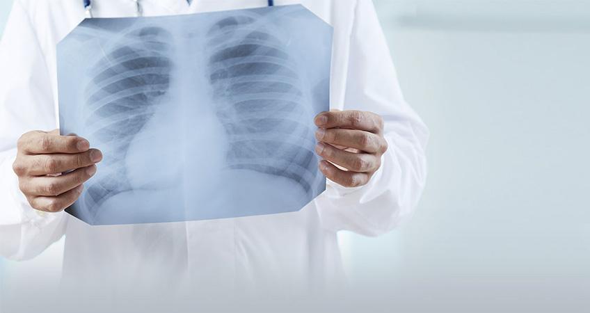FP CGIL CISL FP e UIL FPL chiedono il ritiro linee guida pratiche radiologiche